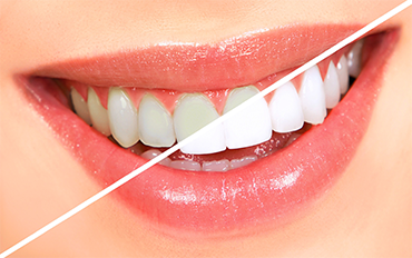 Teeth whitening in chennai